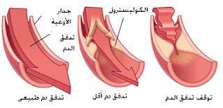 أعراض مرض الكولسترول