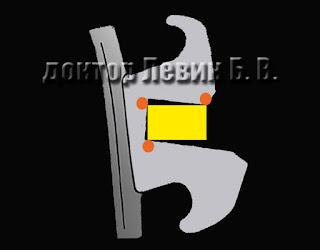 Биомеханика работы брекет системы - квадратные ортодонтические дуги