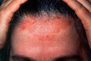 Obat eksim kering di kepala