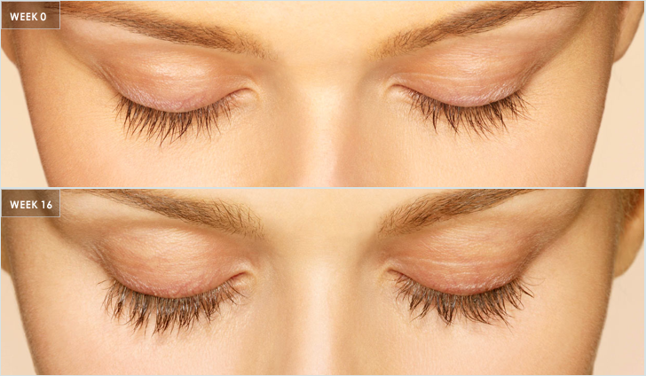 618127210bb Dr. Visha Blog: Latisse's Long Lash Effect