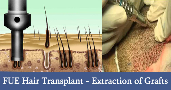 FUE Hair Transplant Extraction of Grafts