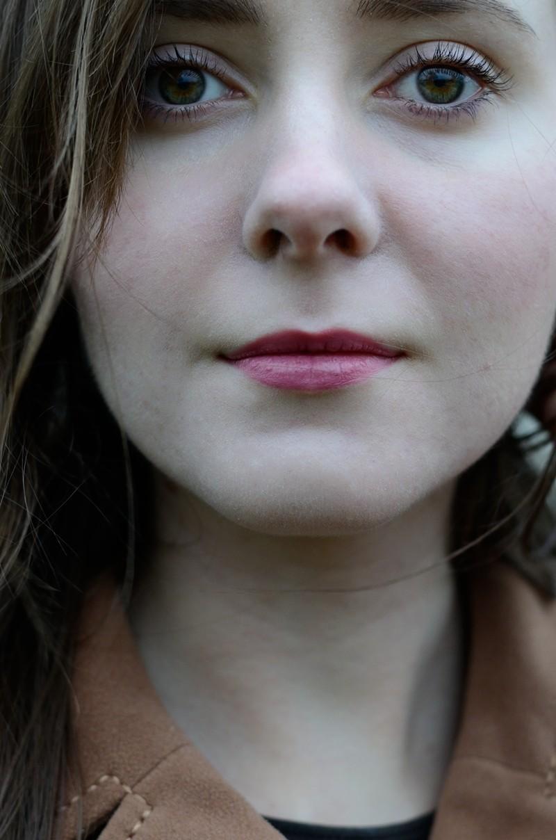 Trądzik nie pospolity | Trądzik pokwasowy/poretinoidowy (wyprysk toksyczny), sterydowy, wyprysk kontaktowy alergiczny, trądzik kosmetyczny, infekcyjne zapalenie mieszków włosowych,  nużeniec, gronkowiec złocisty i dermatoza okołoustna