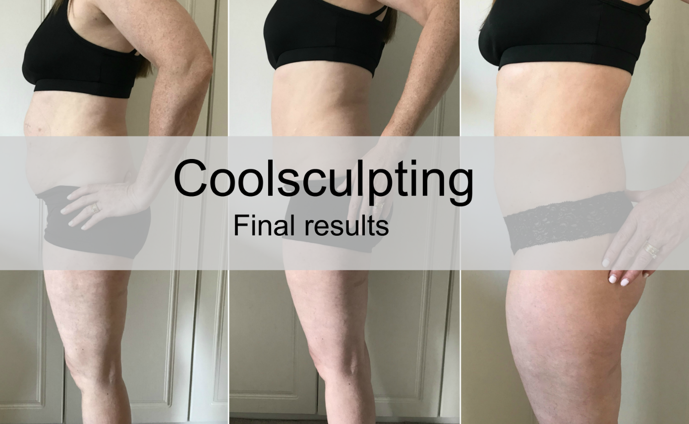 Coolsculpting \ my final results \ cyrolipolysis \ fat freezing \ body confidence \ before and after \ aesthetics \ Priceless Life of Mine \ over 40 lifestyle blog