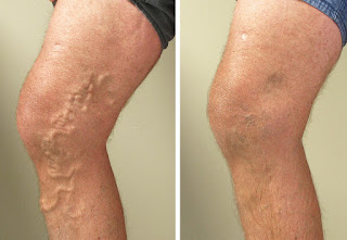 Varicose veins : What is it? and How to cure this disease?