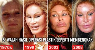 Wajah hasil Operasi Plastik seperti membengkak