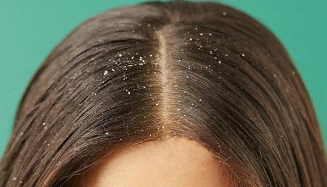 قشر الشعر
