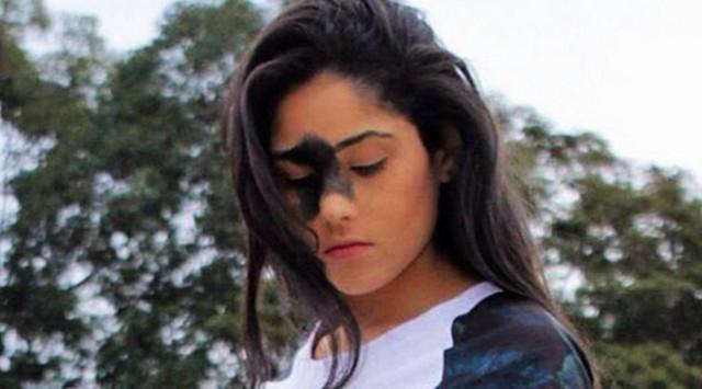 Subhanallah, Gadis Ini Diejek Jelek Karena Tanda Lahir Di Wajah, Jawabannya Menohok Dan Bikin Kita Sadar
