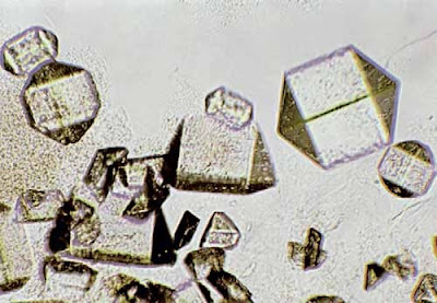 Triple phosphates crystal and amorphous phosphates