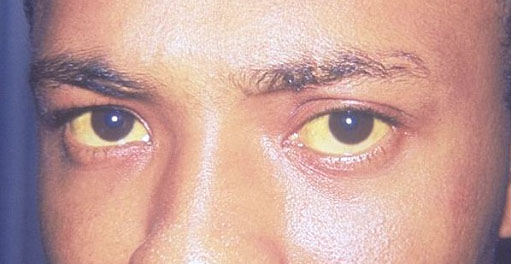mengatasi penyakit mata kuning