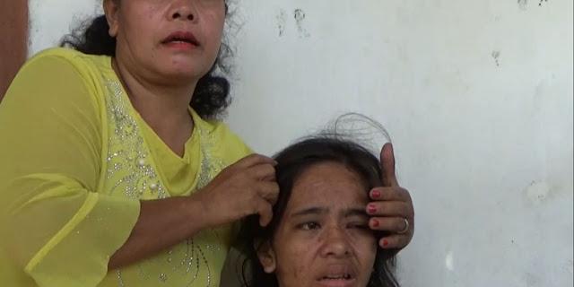 Dituduh Curi Uang Ratusan Juta, PRT ini Disiksa Majikan Berstatus Mantan Dokter Gigi