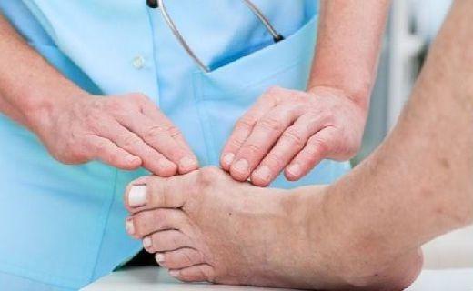 Penyakit asam urat merupakan salah satu dari sekian banyak jenis penyakit reumatik atau radang persendian.