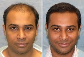 saç ekimi öncesi ve sonrası foto