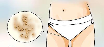 kumpulan obat antibiotik untuk sembuhkan kutil kelamin
