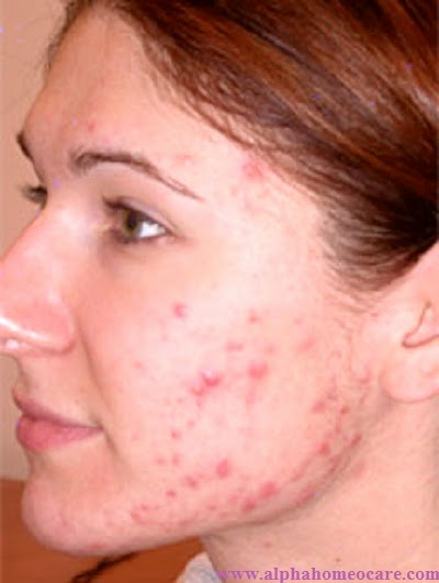 Acne or Pimples Treatment in Homeopathy