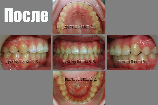Три фото зубов характеризующие прикус пациента после ортодонтического лечения