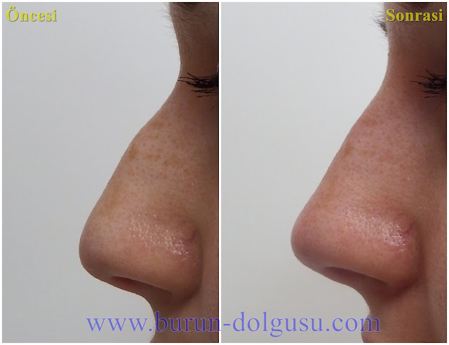 Burun Dolgusu - Dolguyla Burun estetiği - Non-surgical Nose Job In Istanbul - Dolgu İle Burun Ucu Kaldırma - Burun Ucu Dolgusu - Burun Dolgusu Fiyatı - Ameliyatsız Burun Estetiği - Burun Dolgusu Fiyatları - Dolgu İle Burun Kaldırma