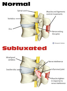 Chiropractic Care for Subluxation