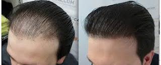 saç ekimi sık