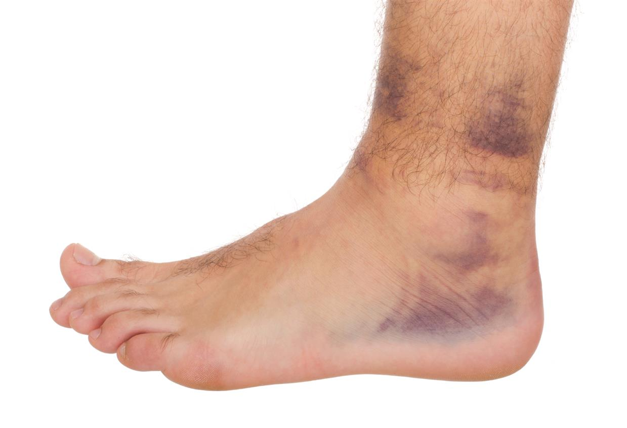 What You Need To Know About Common Soft Tissue Injuries