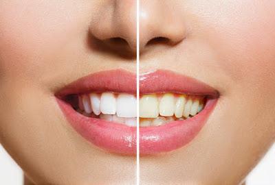 Whites Teeth