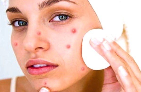 Health: Three Myths On Pimples You Believe But Are Not True