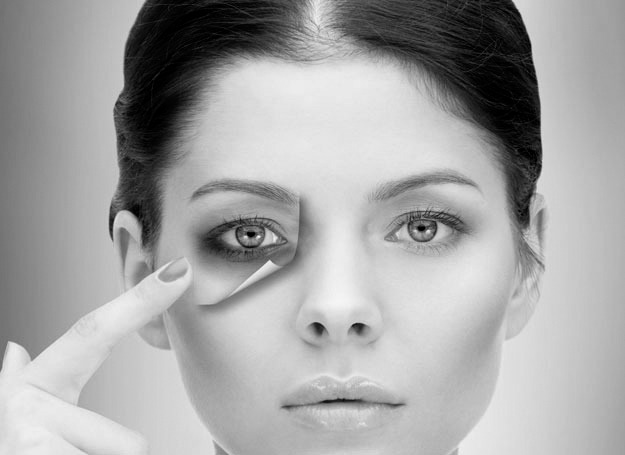 Dark circles around eyes, Dr. Shazia Ali