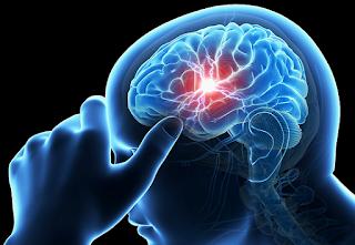 Pengertian penyakit stroke