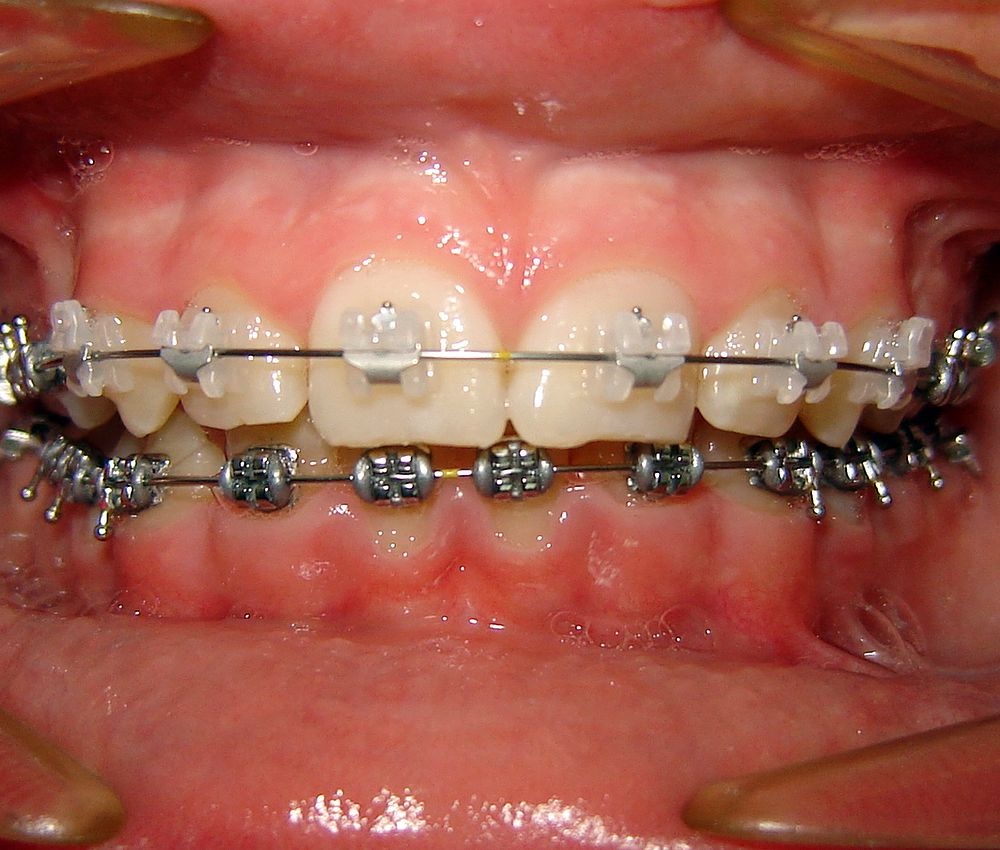brackets-esteticos-metalicos