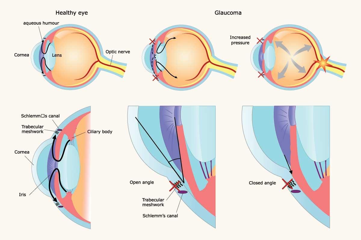 глаукома это