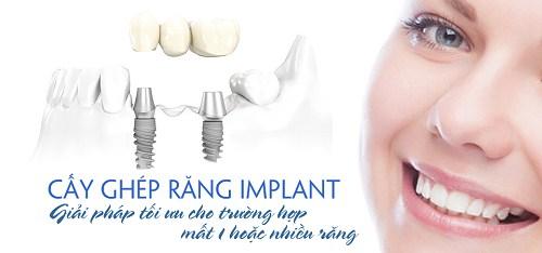 dịch vụ Trồng Cấy Ghép Implant -1