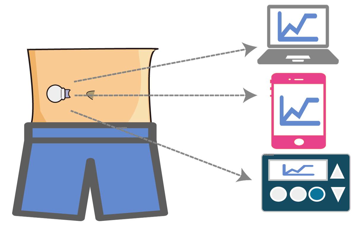 CGMS 連續血糖監測系統的類型