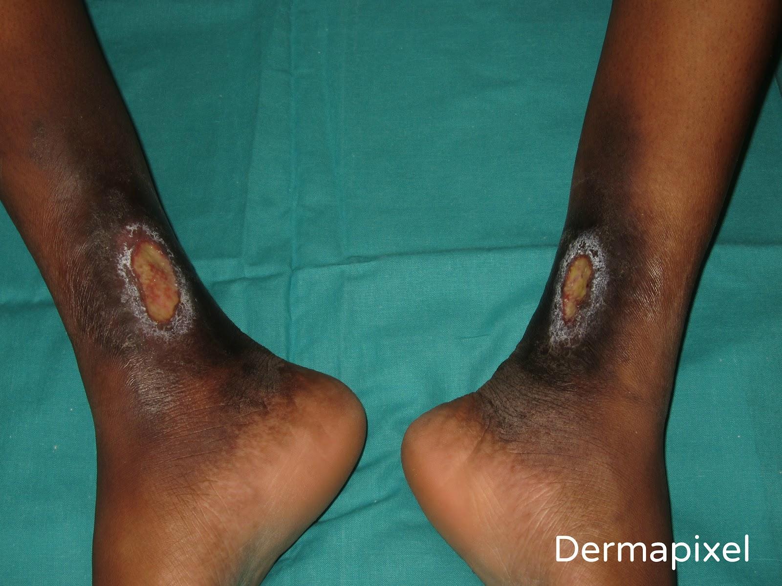 tobillos hinchados y erupción en la parte inferior de las piernas
