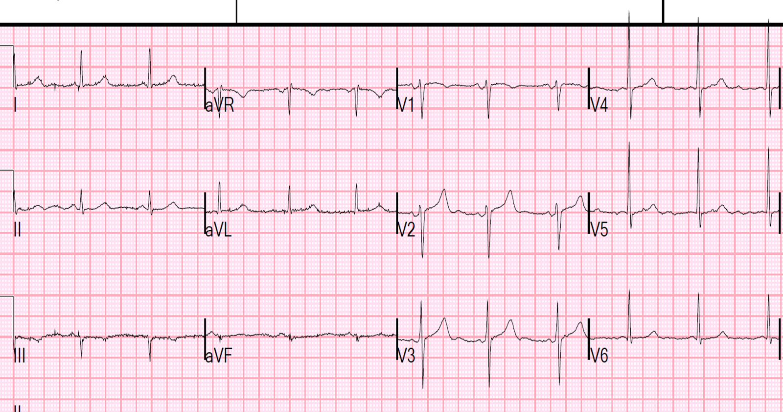 Dr. Smith's ECG Blog: A 50-something with severe chest pain and a normal ECG