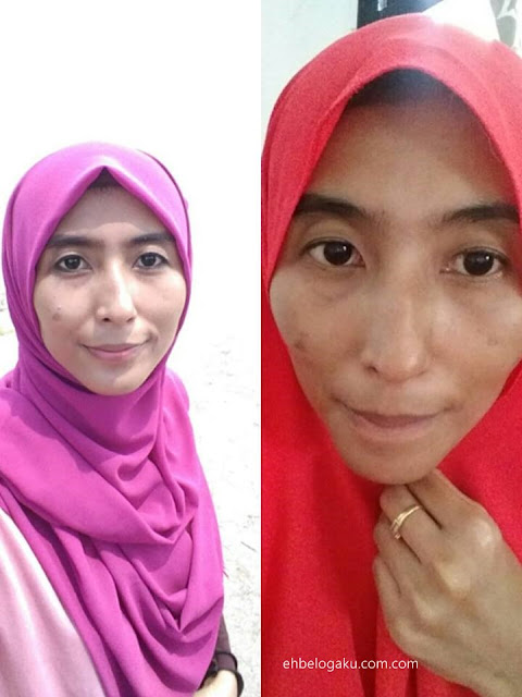 buang kedutan,dark circle,wrinkle,treatment sulam korea