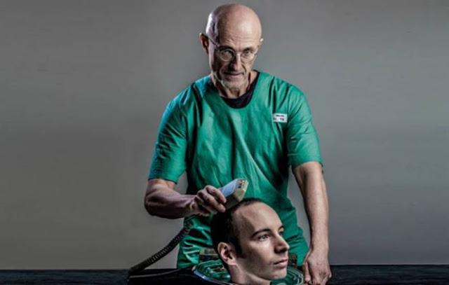 Transplante de cabeça - Será que funciona?