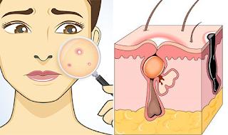 Comment se forme l'acné juvénile? ses causes et traitements.