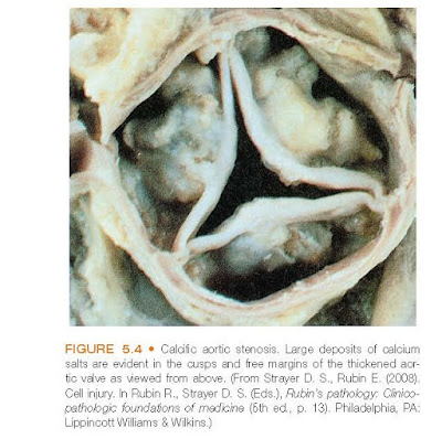Calcific aortic stenosis. Large deposits of calcium salts are evident in the cusps and free margins of the thickened aortic valve as viewed from above.