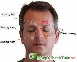 viêm mũi dị ứng là gì?