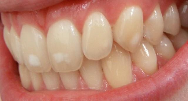 بُقع بيضاءُ على الأسنان