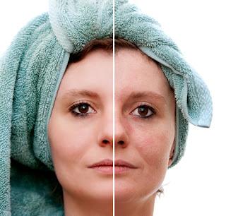 Cara Mengecilkan Pori-pori Pada Wajah Dan Hidung