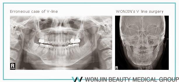 face contouring 'WONJIN'