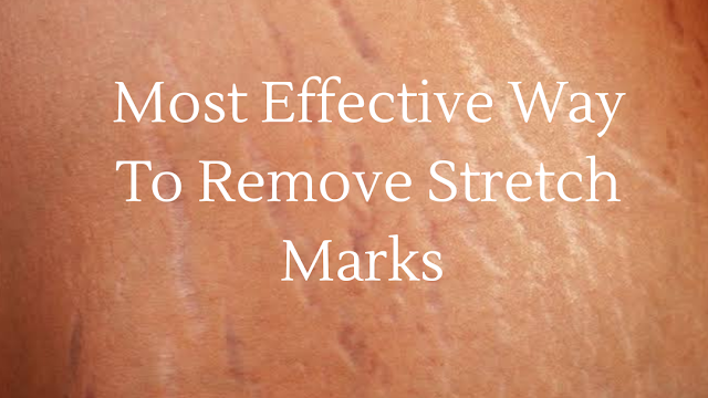 Most Effective Way To Remove Stretch Marks