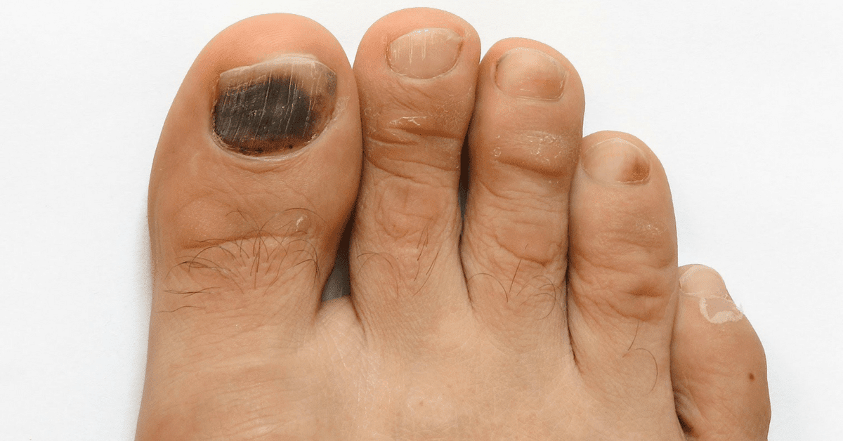 This Is What Your Fingernails Are Warning You About: Organ Failure ...