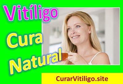 como-se-cura-el-vitiligo-manchas-blancas-piel-remedios-caseros-tratamiento-natural