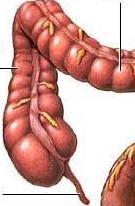 gejala-usus-buntu-appendicitis