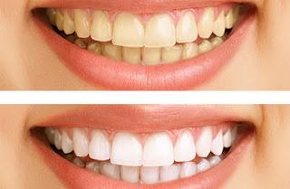 نصائح بعد تبييض الاسنان بالليزر