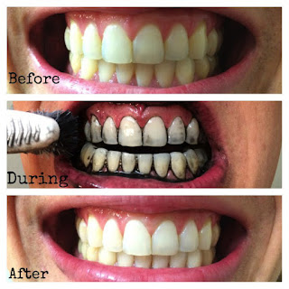 cara menghilangkan karang gigi secara alami dengan arang aktif