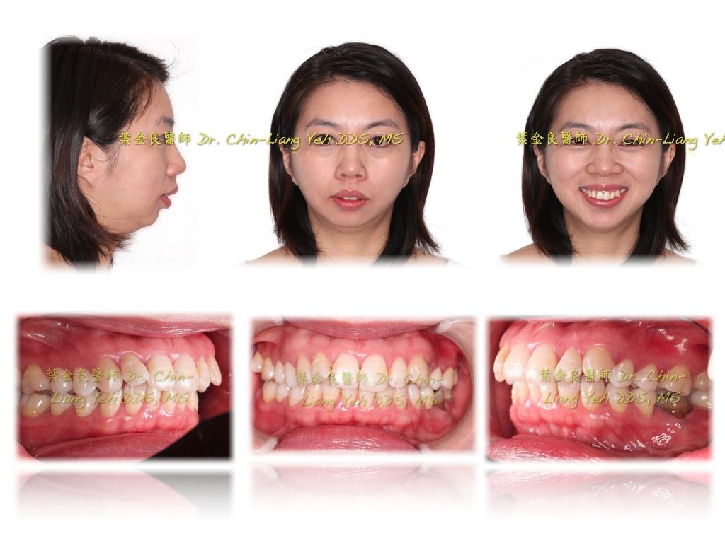 齒顎矯正專科 葉金良醫師顱顏矯正美學 Craniofacial Esthetics -Higher Standard Orthodontic World: 看似短下巴的暴牙矯正 ...