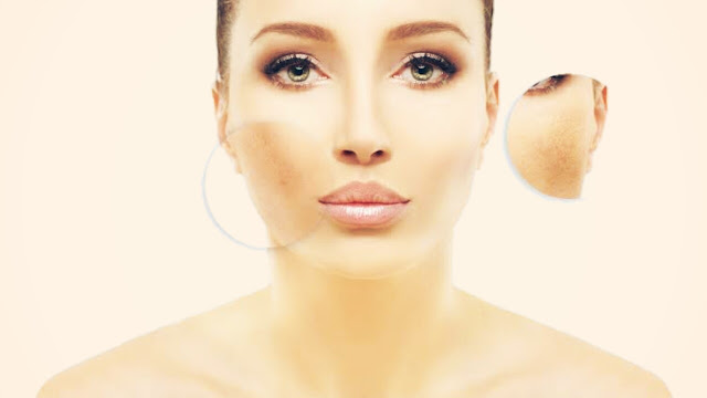 How to Cover Dark Spots on the Face with makeup