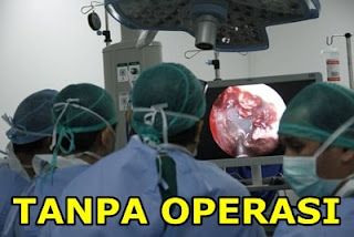 Cara Mengobati Penyakit Tumor Jinak Tanpa Operasi